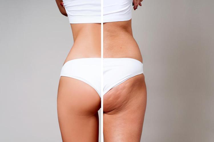Constrare la cellulite